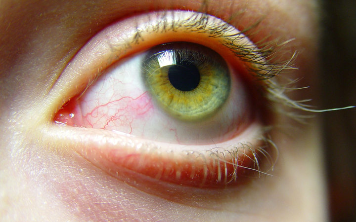 How Can I Relieve The Symptoms Of Dry Eye?